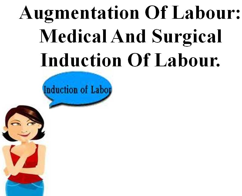 Induction of labour-Maternity nursing ppt